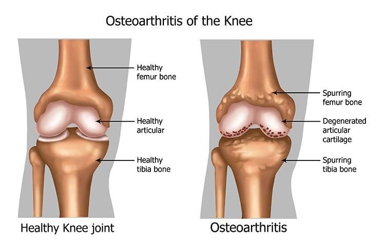 Osteoarthritis Pain Relief In Bellingham , WA - Bellingham Acupuncture Clinic