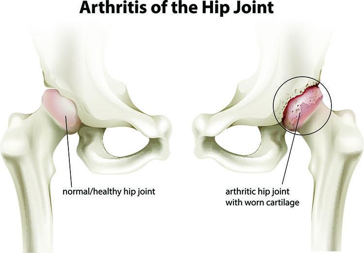 Arthritis Pain Relief In Bellingham , WA - Bellingham Acupuncture Clinic