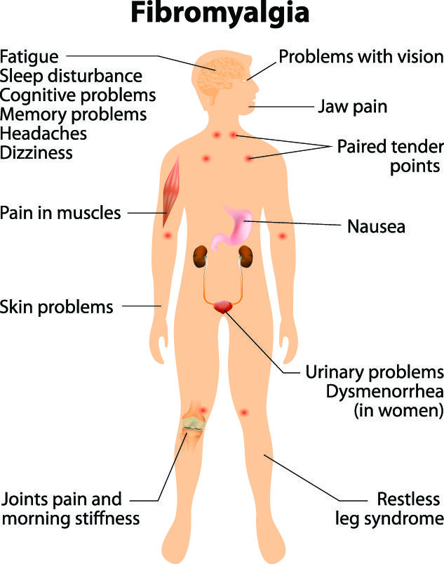 Fibromyalgia Natural Treatment With Chinese Medicine - Bellingham Acupuncture Clinic